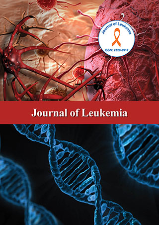 Journal of Leukemia- Leukemia Open Access Journals