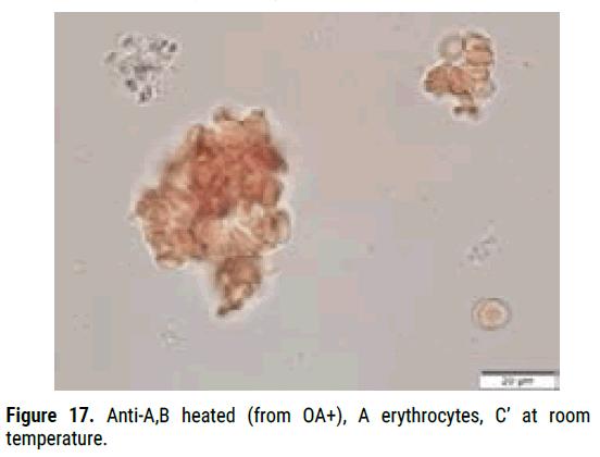 biology-todays-erythrocytes