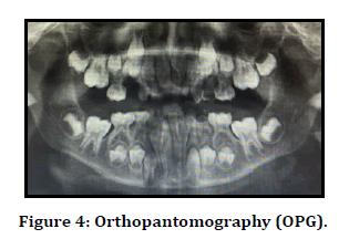 medical-dental-science-orthopantomography