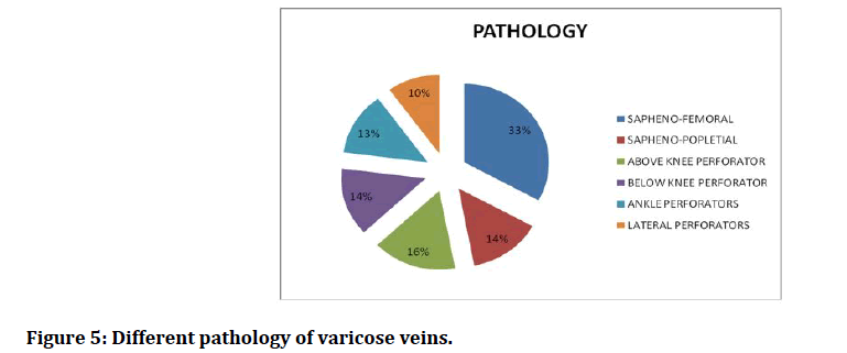medical-dental-science-varicose-veins