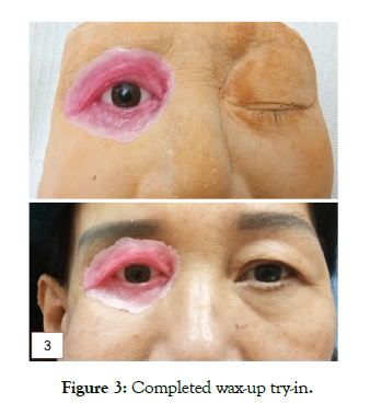 reconstructive-surgery-anaplastology-completed