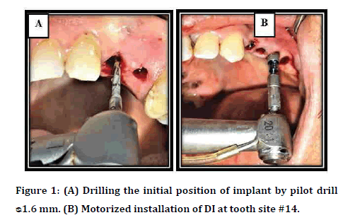 Dental-Science-Drilling-initial