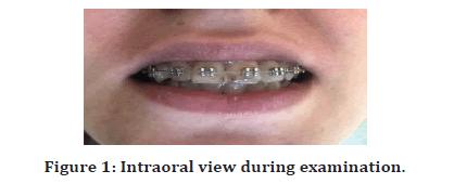 Medical-Dental-Intraoral-view