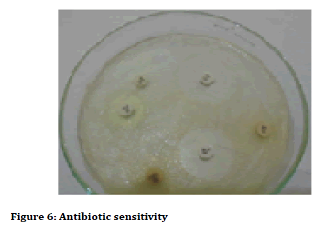 Medical-dental-Antibiotic-sensitivity