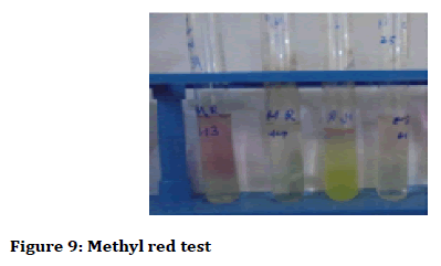 Medical-dental-Methyl-red-test
