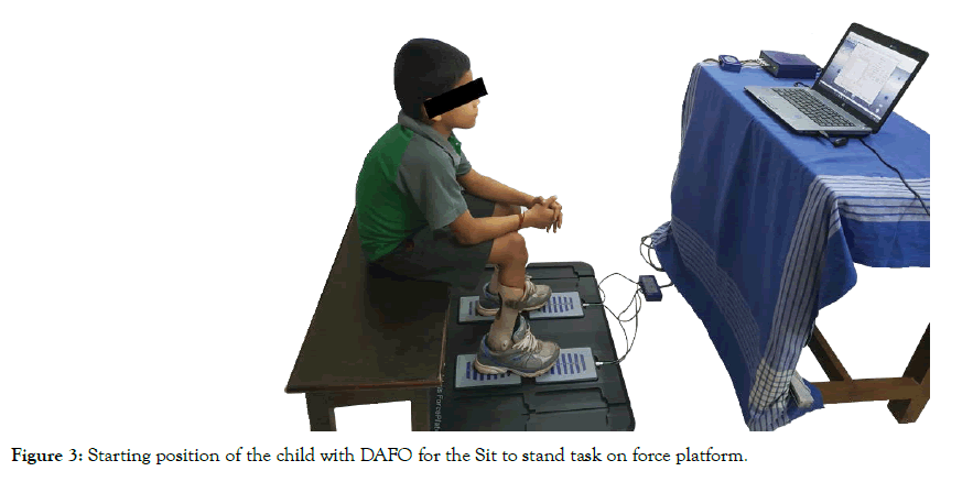 Physical-Therapy-force-platform