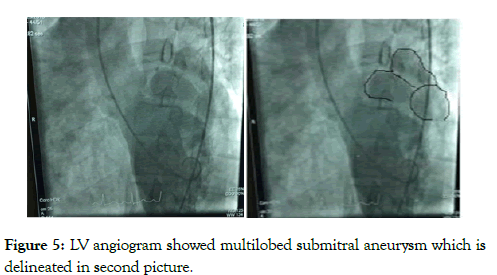 angiolog-submitral-aneurysm