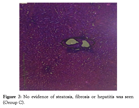 applied-pharmacy-steatosis