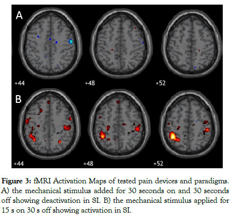 biomedical-engineering-fMRI-Activation