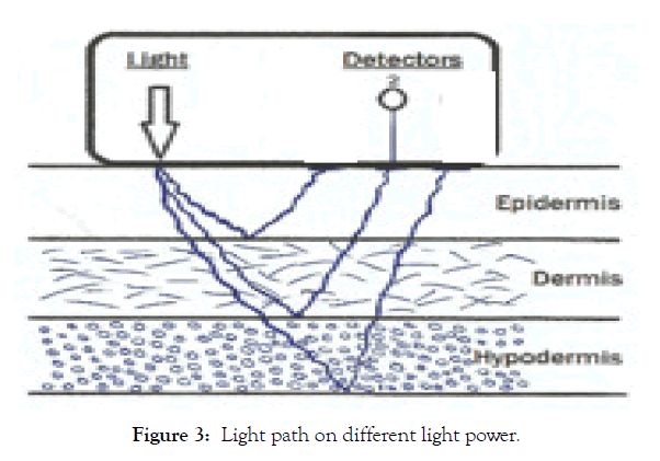 biomedical-engineering-medical-devices-light-power