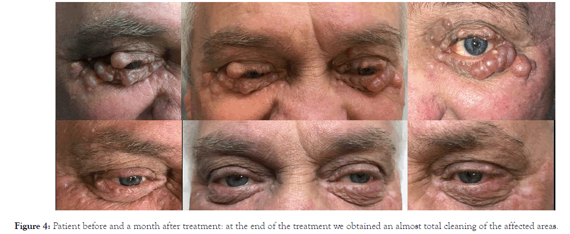 clinical-experimental-dermatology-research-treatment