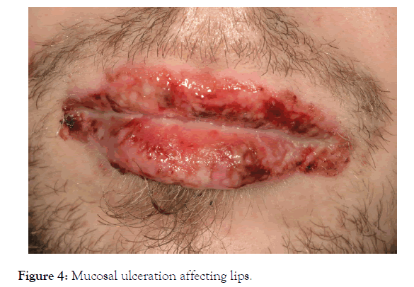 clinical-experimental-dermatology-research-ulceration