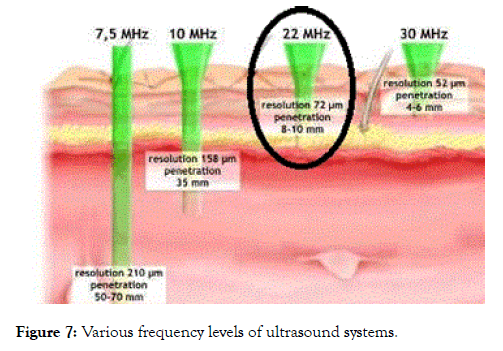 clinical-experimental-dermatology-research-ultrasound