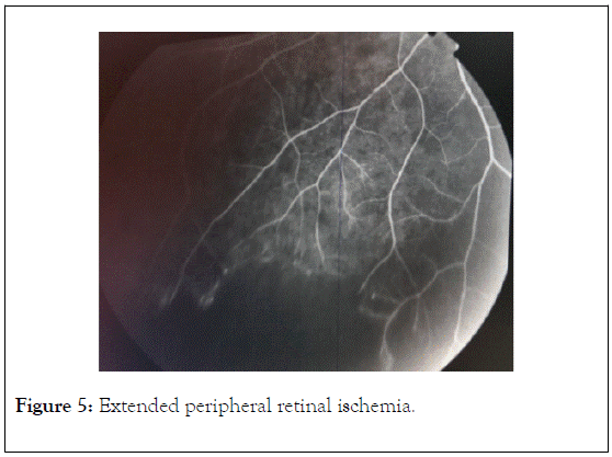 clinical-experimental-ophthalmology-retinal