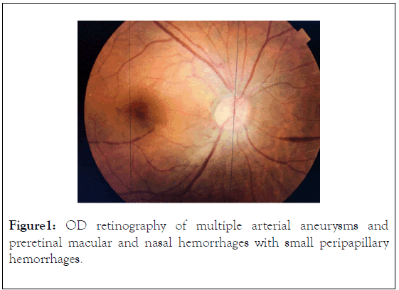 clinical-experimental-ophthalmology-retinography
