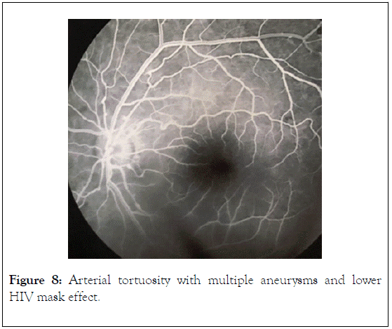 clinical-experimental-ophthalmology-tortuosity