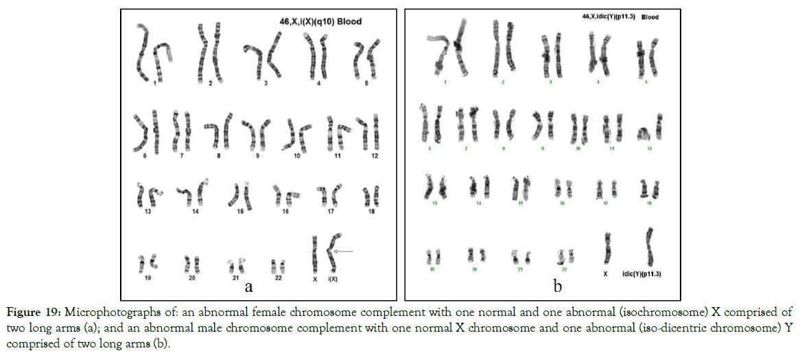 down-syndrome-iso-dicentric-chromosome