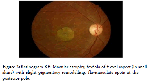eye-diseases-Macular-atrophy