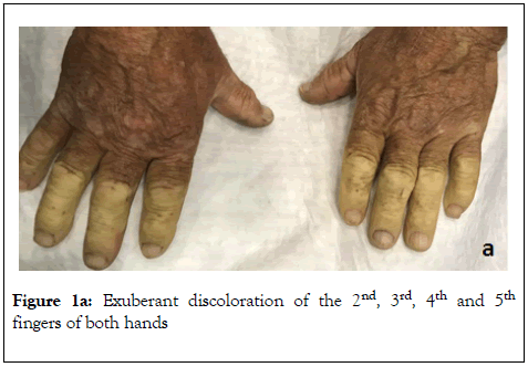 family-medical-science-research-Exuberant-discoloration