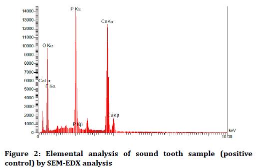 medical-dental-science-Elemental-analysis