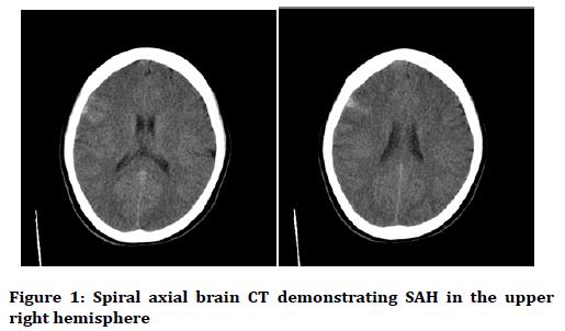 medical-dental-science-Spiral-axial-brain