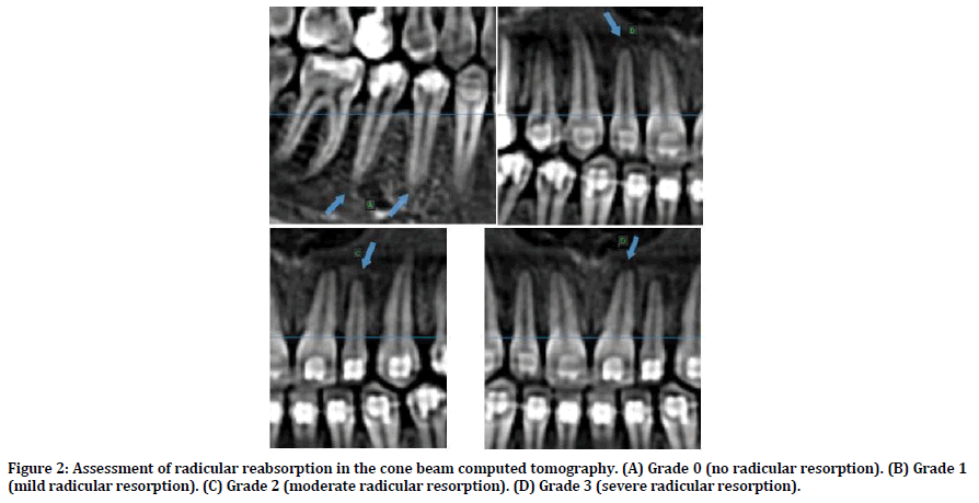 medical-dental-science-computed-tomography