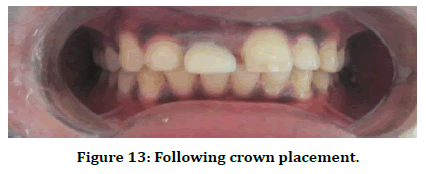 medical-dental-science-crown-placement