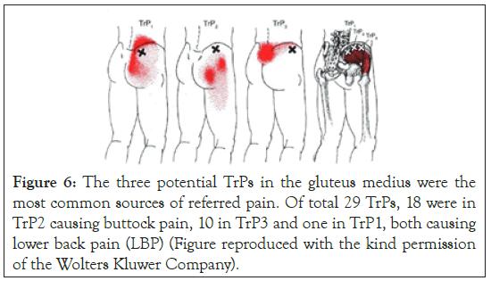physical-medicine-gluteus
