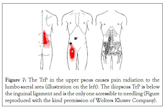 physical-medicine-psoas