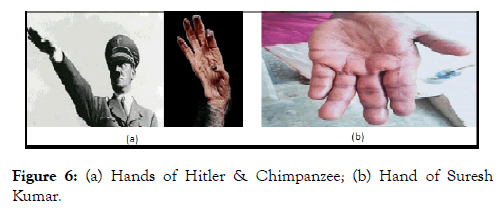 psychology-psychotherapy-hands-hitler