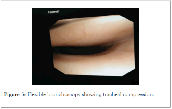 surgery-anesthesia-bronchoscopy